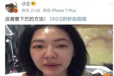 好姐妹一同变脸巨细S都有水肿困扰而陈妍希却能美回20岁